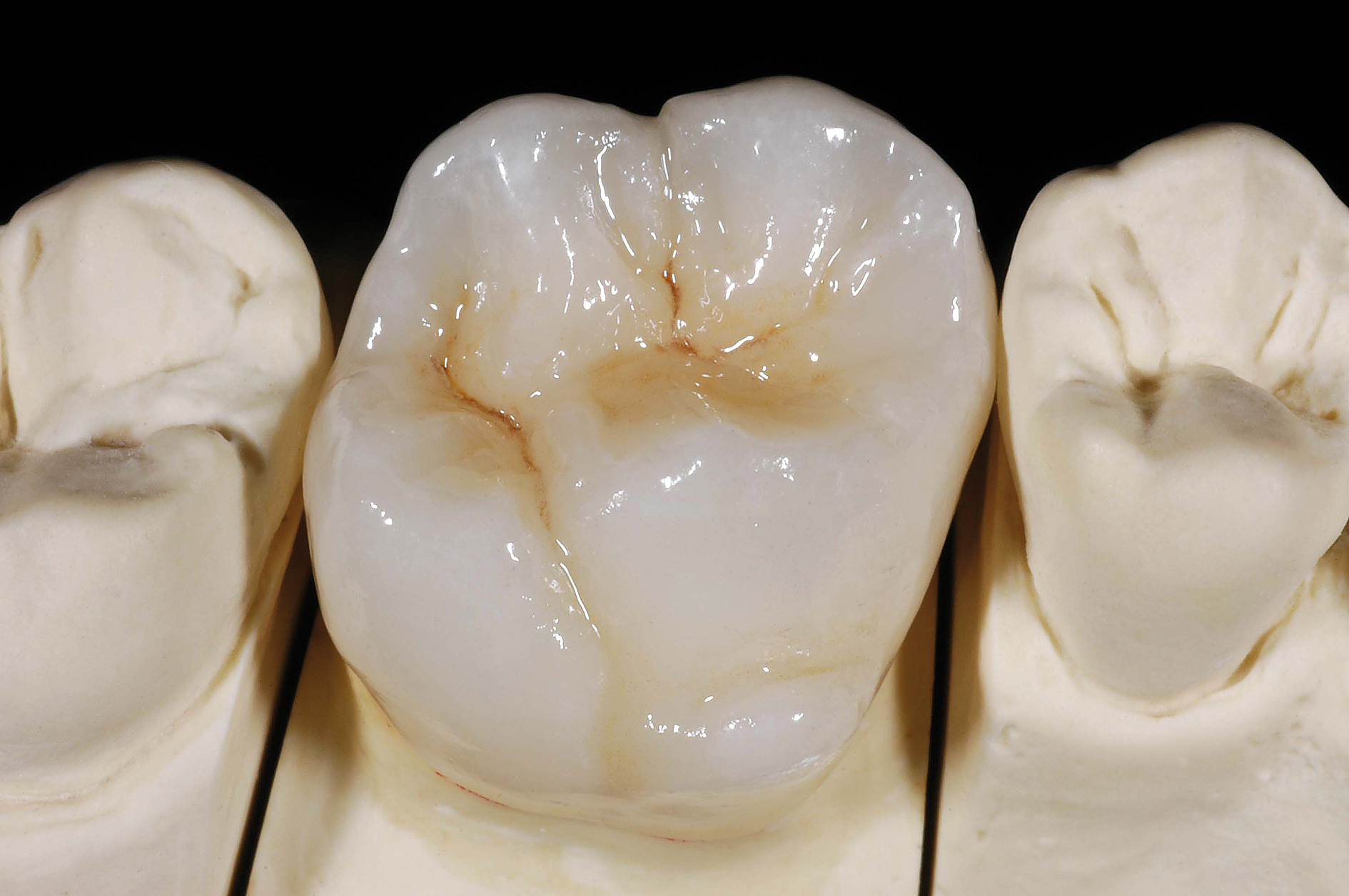 full-zirconia-crown